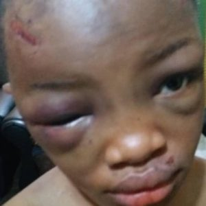 9-year-old Girl Child brutally molested, police arrest 40-year-old Paedophile Uncle in Anambra